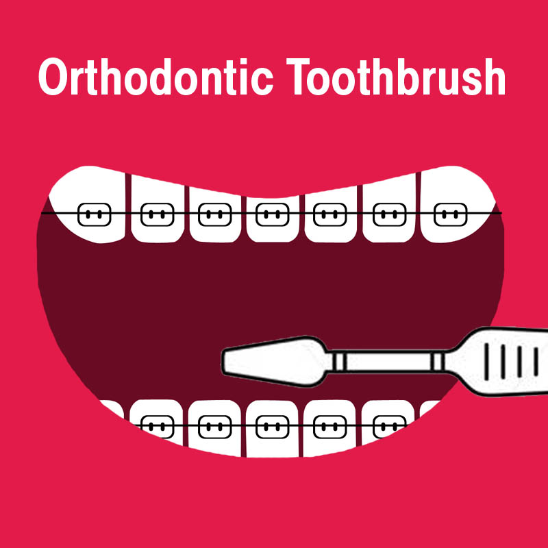 Orthodontic Brushes